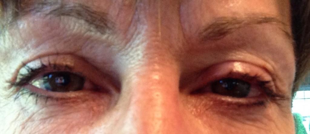 alergy eyes
