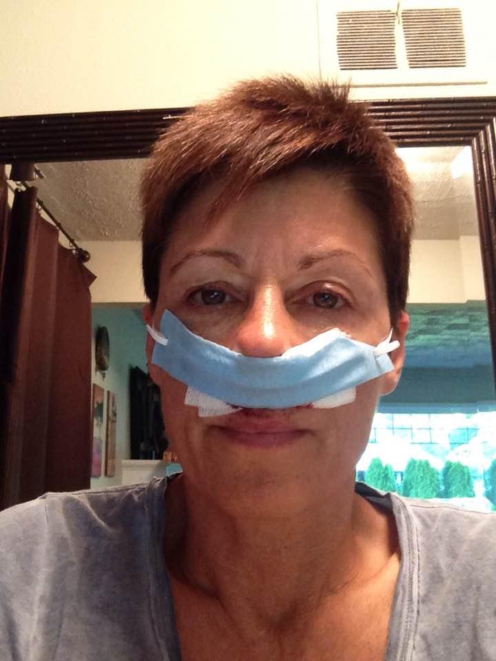 sinus surgery | Running in Muck